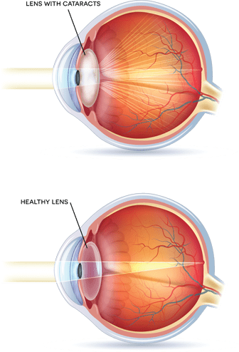 Cataracts Symptoms Definitions Causes Abba Eye Care